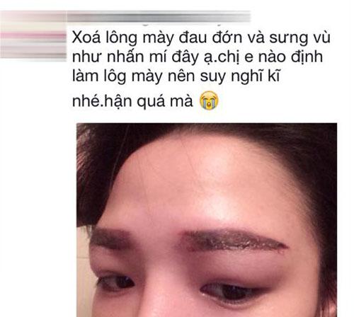 cach-xoa-xam-long-may-hoan-hao-2