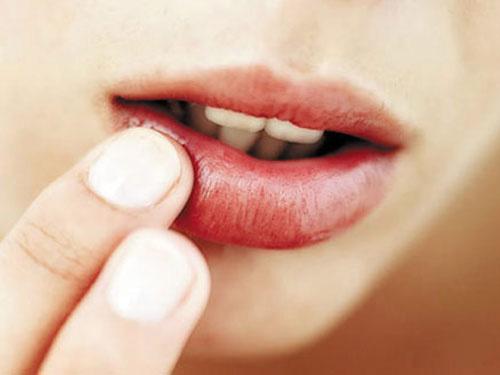 Chăm sóc đôi môi sau khi xóa xăm như thế nào?
