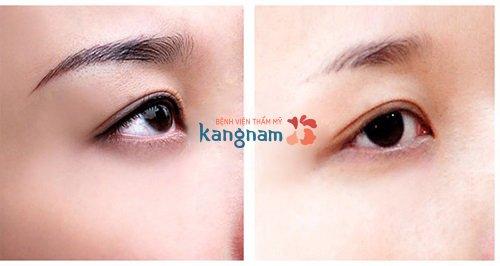 kết quả sau khi xóa xăm mí mắt tại Kangnam