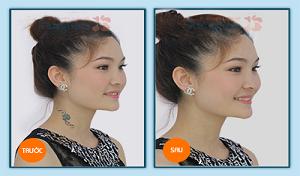 Hình ảnh trước và sau khi xóa xăm