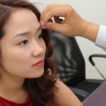 Địa chỉ đáng tin cậy để xóa xăm lông mày ở Hà Nội