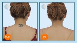 Giải đáp: Cách xóa hình xăm sau gáy an toàn hiệu quả nhất