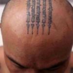 Xóa hình xăm trên đầu liệu có đảm bảo an toàn?