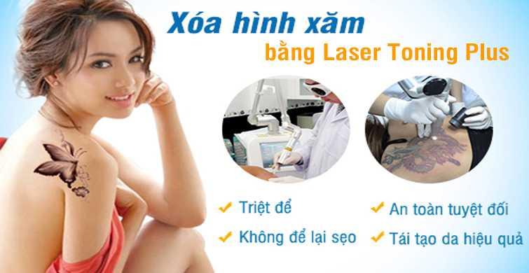 Xóa xăm chân mày bằng laser toning