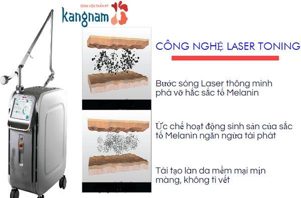 Máy xóa xăm bằng Laser Toning