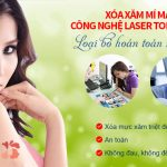 Laser Toning Plus – xóa xăm mí mắt an toàn, không ảnh hưởng tới thị lực