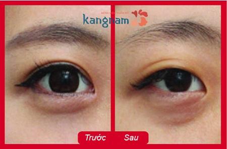 Xóa xăm mí mắt an toàn tại Kangnam