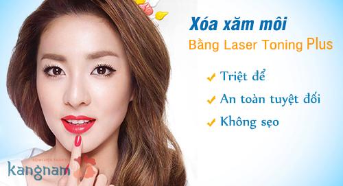 xóa xăm môi bằng laser