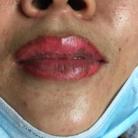 Xóa xăm môi bao nhiêu tiền