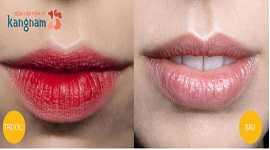Xóa xăm môi ở đâu đẹp và an toàn? Chị em mách nhau